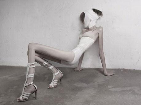 anorexia moda